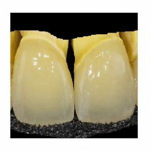 Dentálna keramika